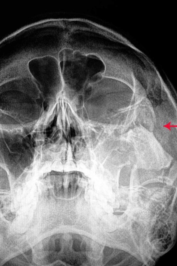 traumatic-fracture-zygomatic-bone (1)